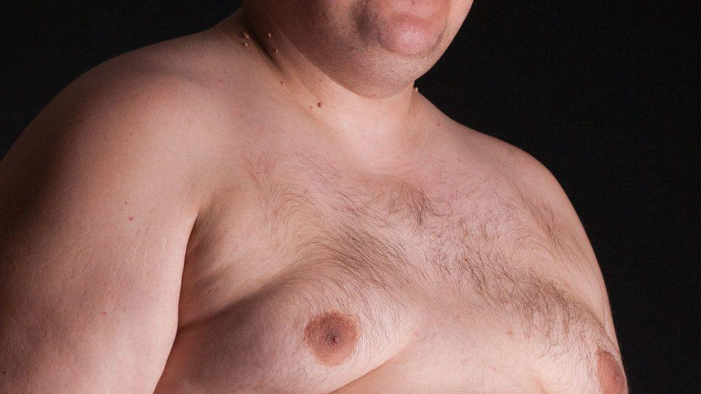9 Pronged Battle Plan To Reverse Gynecomastia Get Rid Of Man Boobs Go Solo Fitness